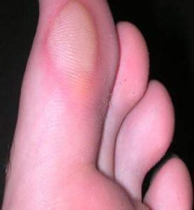 Troubled Soles Foot Blisters And What To Do About Them Thistle Trekking